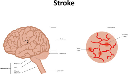 He's having a stroke - here are the signs to look for